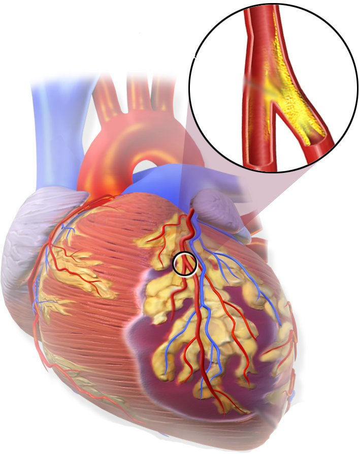cirugia-coronaria-1