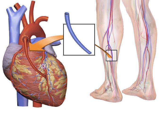 cirugia-coronaria-2