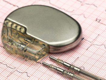neolaser-electroestimulacion-marcapasos